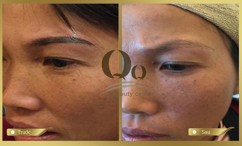 Hình ảnh trước và sau khi xóa xăm lông mày