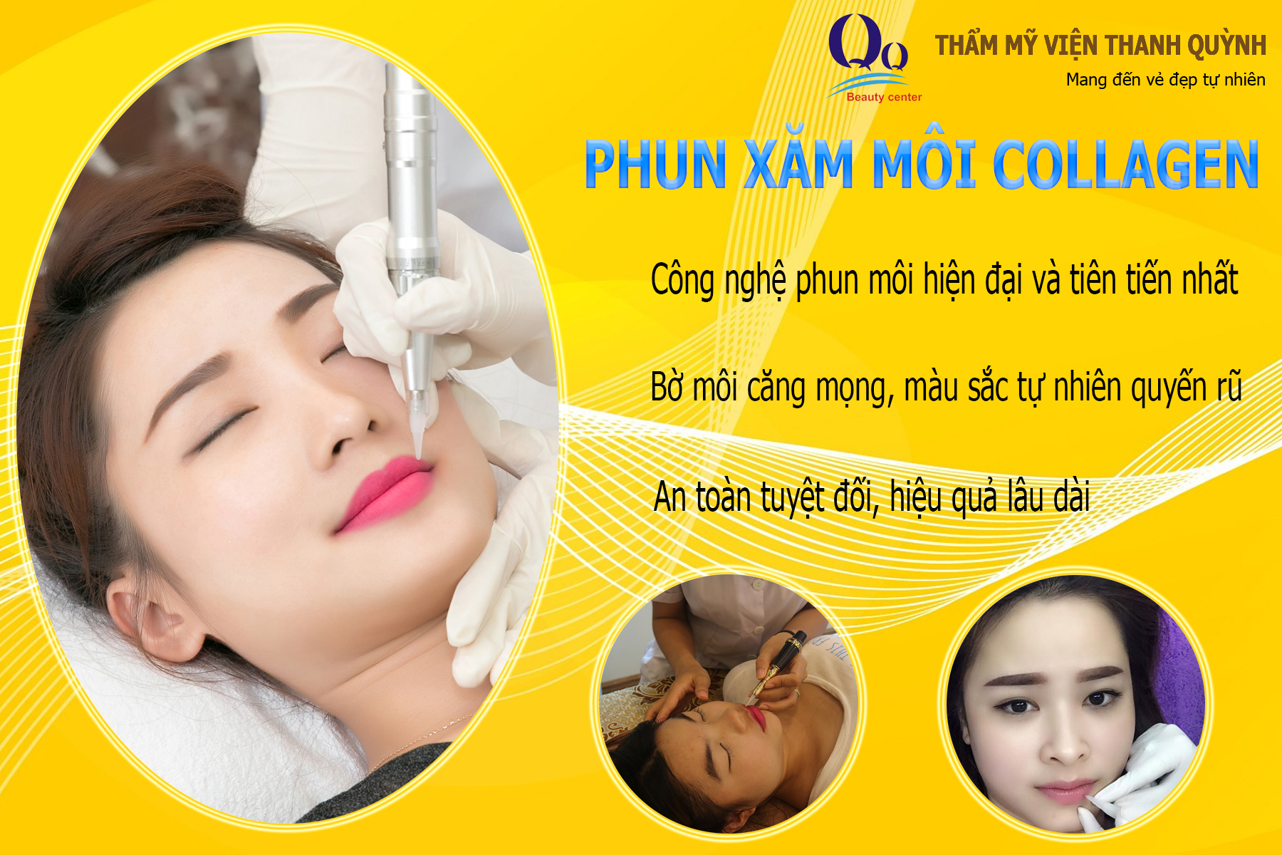 phun-moi-collagen