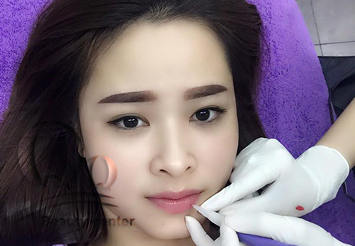 phun-xam-moi-kieng-an-gi