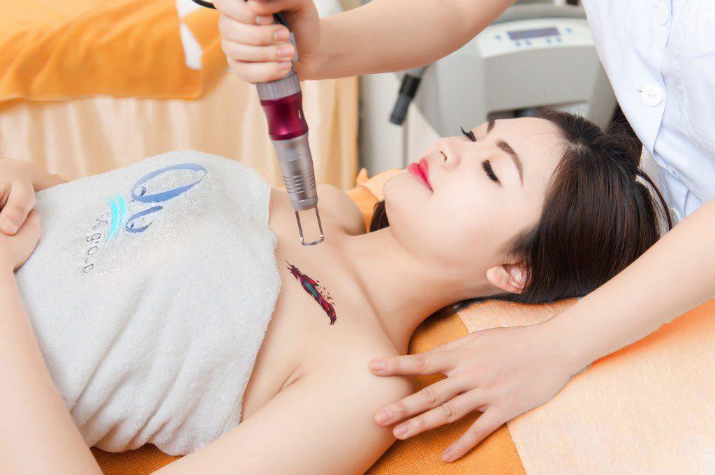 Công nghệ Laser Toning xóa xăm hiệu quả mà không để lại sẹo